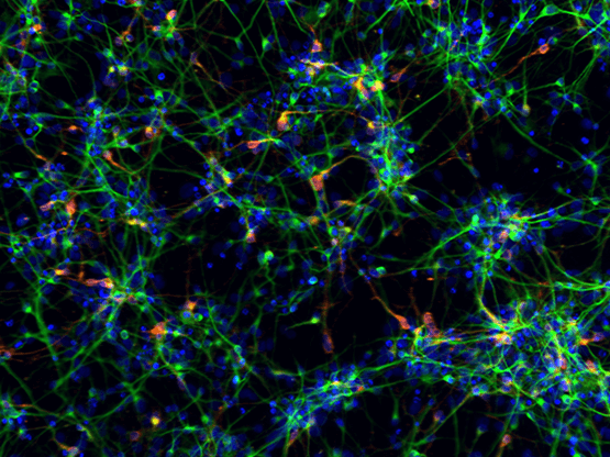 Stem Cell Neurons