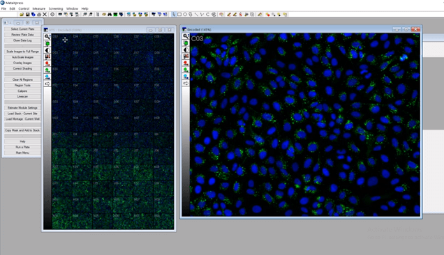 Image analysis on ImageXpress Micro Confocal using MetaXpress