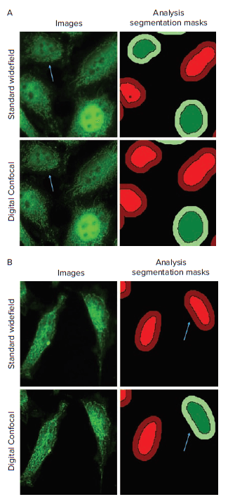 Translocation Analysis of Standard Widefield and Digital Confocal Images