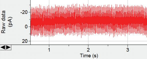 Electrical hum overwhelming a single-channel recording