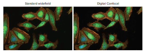 Standard Widefield and Digital Confocal Images